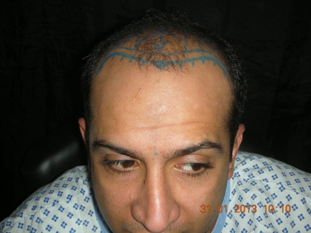 dense-pack-hairline-marking