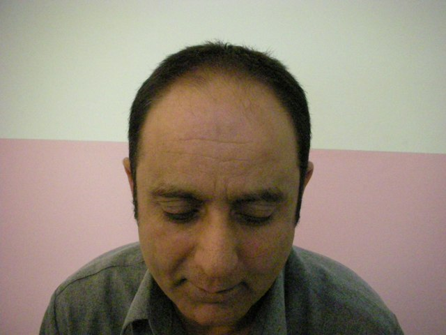 hair-transplant-lahore-before