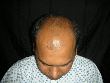 hair-transplant-pakistan
