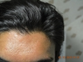 frontal-hairline-density-2000-follicles