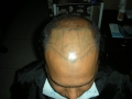 frontal-hairline-treatment