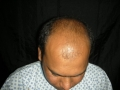 top-view-in-hair-loss-clinic-pakistan