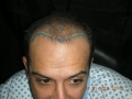 young-age-hair-transplant