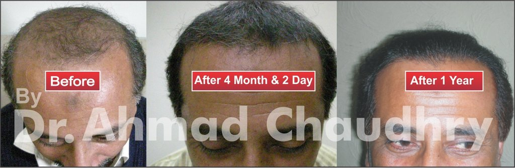 Best hair transplantation clinic Pakistan