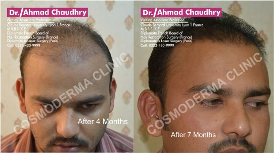 Fue Hair transplantation in Pakistan