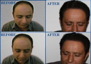 Fue hair transplant Pakistan cost