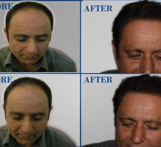 Cosmetic Surgery Pakistan