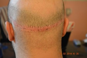 Fue hair transplant suitable for keloids