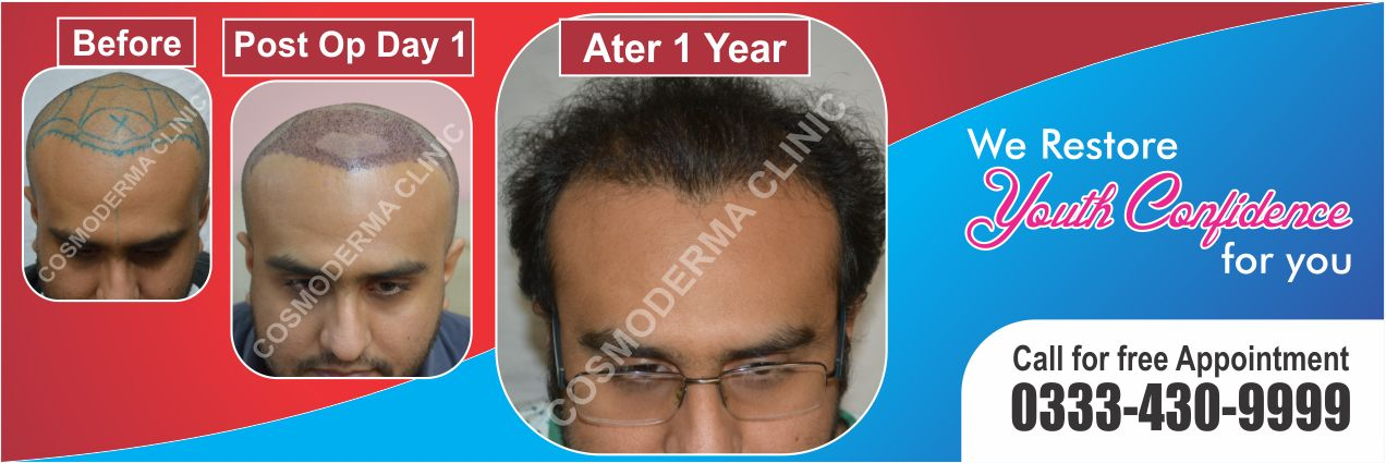 Hair growth with fue pakistan