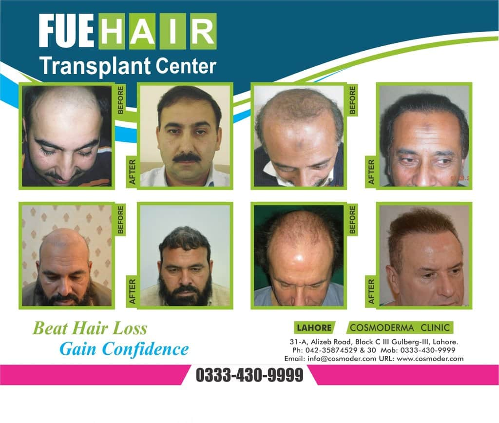 Expectation Regarding FUE Hair Transplant Results