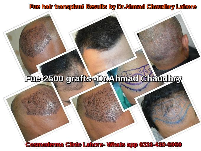 hair-transplant-in-narowal-patient