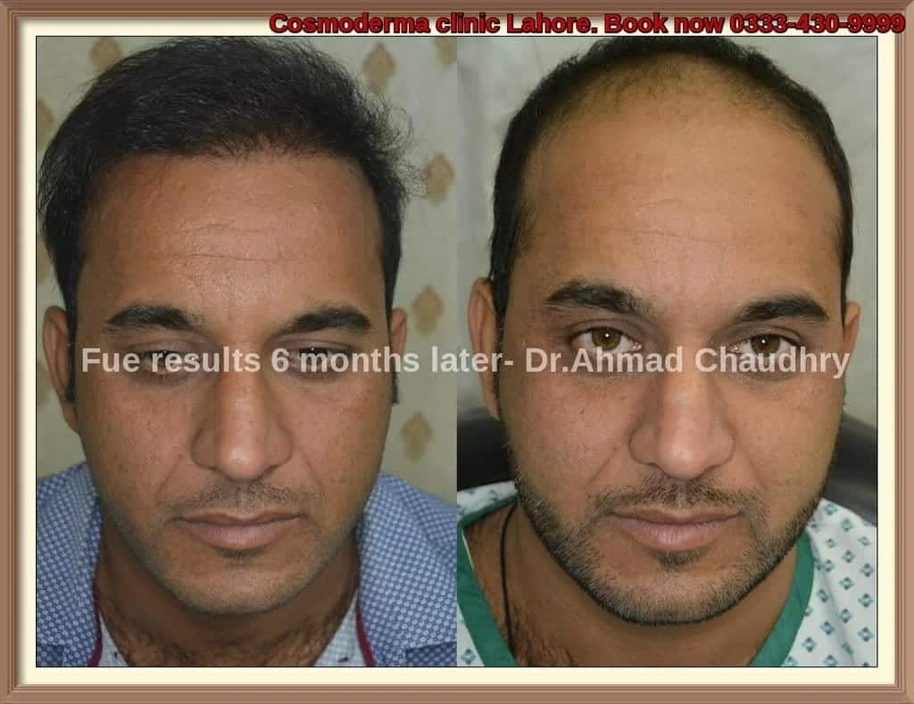Fue results lahore