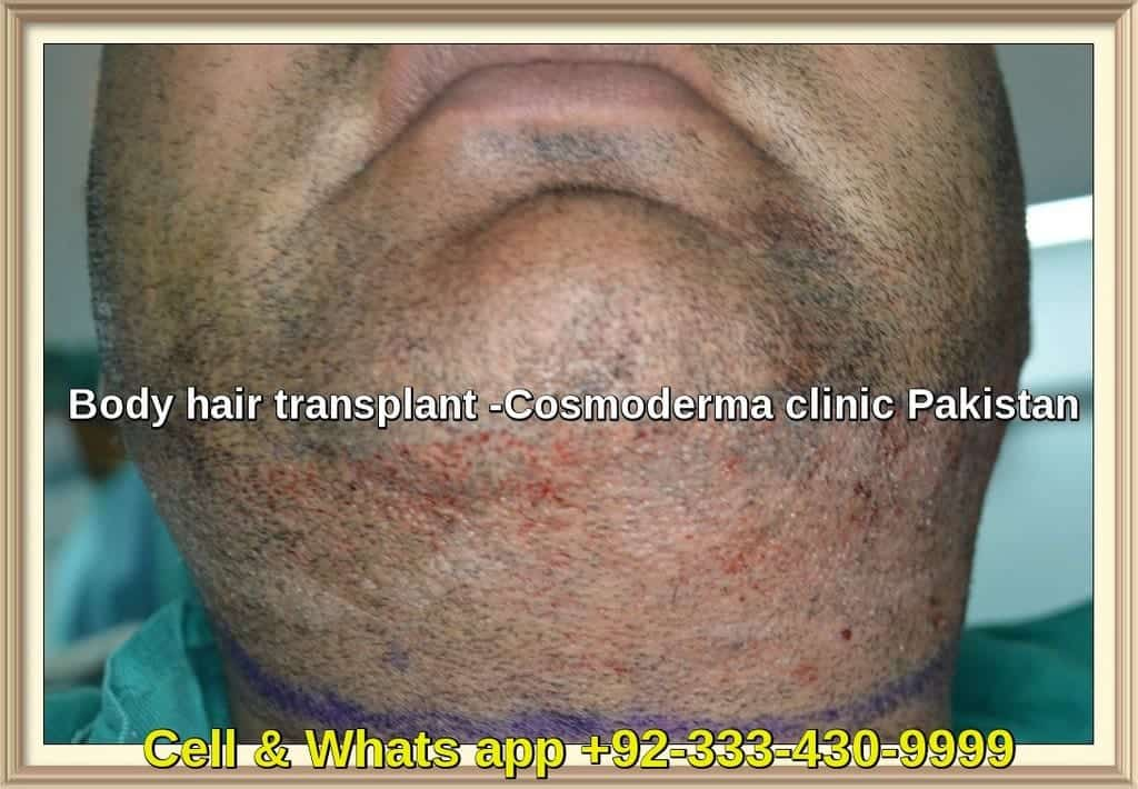 Body hair transplant in Pakistan